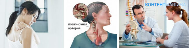 Асимметрия диаметров позвоночных артерий s d